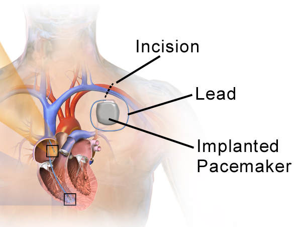 Pacemaker FAQs