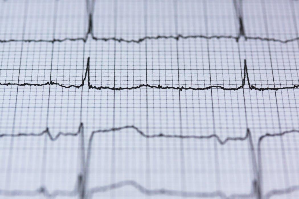 A heart attack glossary ekg