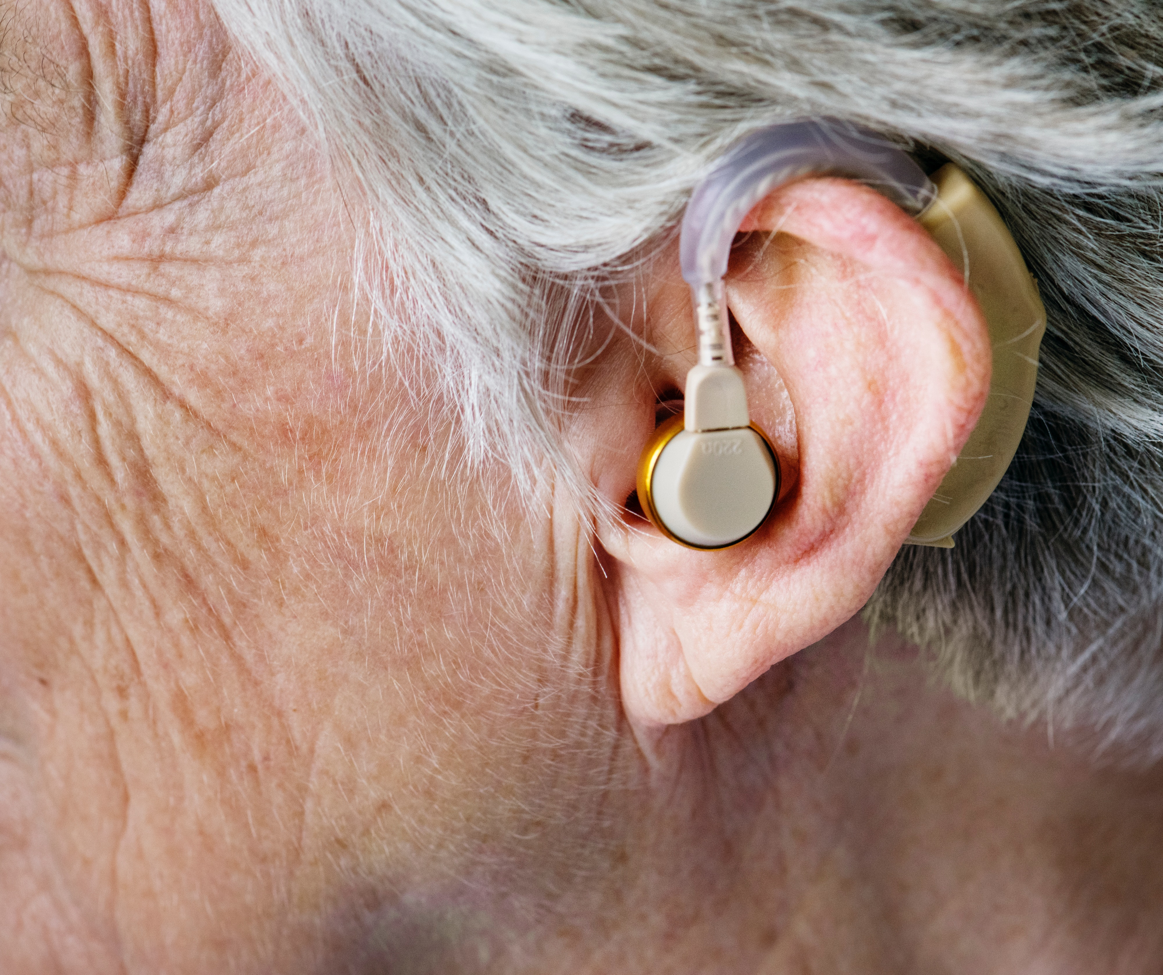 The Impact of Seeing and Hearing on Cognitive Decline