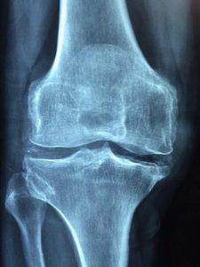 Breakthrough in Treatment of Osteoarthritis